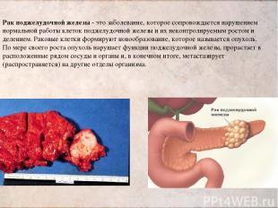 Рак поджелудочной железы - это заболевание, которое сопровождается нарушением но