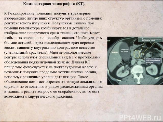 Компьютерная томография (КТ). КТ-сканирование позволяет получить трехмерное изображение внутренних структур организма с помощью рентгеновского излучения. Полученные снимки при помощи компьютера комбинируются в детальное изображение поперечного среза…