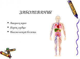 ЗАБОЛЕВАНИЯ Атеросклероз Порок сердца Ишемическая болезнь