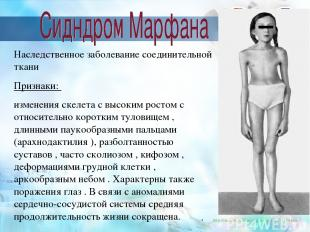 http://medarticle37.moslek.ru/articles/15184.htm Наследственное заболевание соед