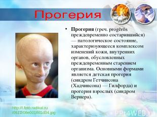Прогерия (греч. progērōs преждевременно состарившийся) — патологическое состояни