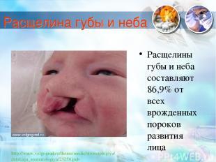 Расщелины губы и неба составляют 86,9% от всех врожденных пороков развития лица