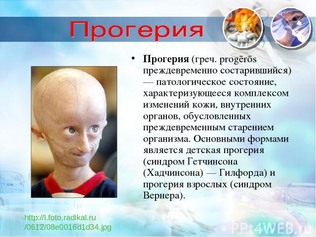 Прогерия (греч. progērōs преждевременно состарившийся) — патологическое состояние, характеризующееся комплексом изменений кожи, внутренних органов, обусловленных преждевременным старением организма. Основными формами является детская прогерия (синдр…