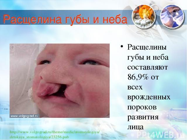 Расщелины губы и неба составляют 86,9% от всех врожденных пороков развития лица http://www.volgograd.ru/theme/medic/stomatologiya/detskaya_stomatologiya/23256.pub