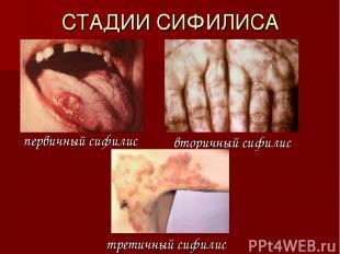 СТАДИИ СИФИЛИСА первичный сифилис вторичный сифилис третичный сифилис