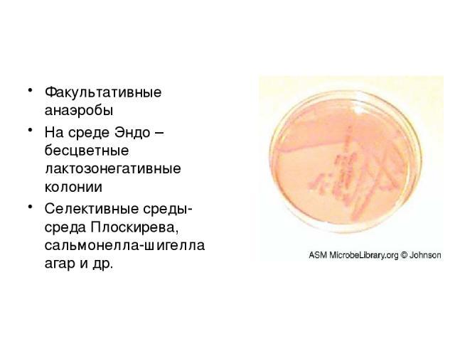 Факультативные анаэробы На среде Эндо – бесцветные лактозонегативные колонии Селективные среды- среда Плоскирева, сальмонелла-шигелла агар и др.