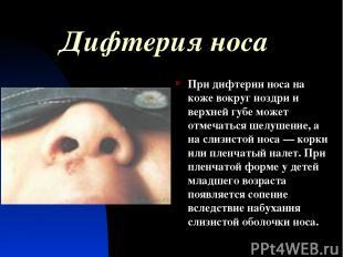 Дифтерия носа При дифтерии носа на коже вокруг ноздри и верхней губе может отмеч