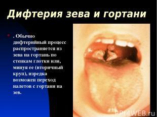 Дифтерия зева и гортани . Обычно дифтерийный процесс распространяется из зева на