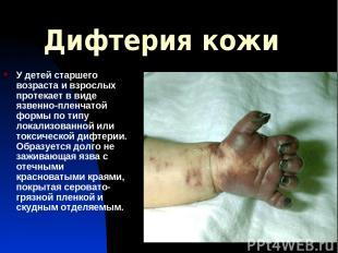 Дифтерия кожи У детей старшего возраста и взрослых протекает в виде язвенно-плен