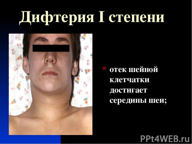 Дифтерия I степени отек шейной клетчатки достигает середины шеи;