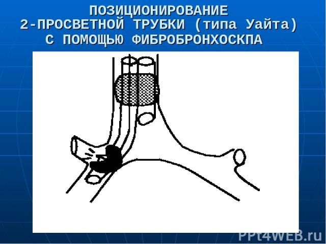 ПОЗИЦИОНИРОВАНИЕ 2-ПРОСВЕТНОЙ ТРУБКИ (типа Уайта) С ПОМОЩЬЮ ФИБРОБРОНХОСКПА