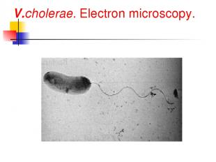 V.cholerae. Electron microscopy.