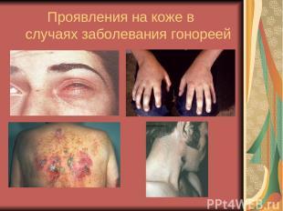 Проявления на коже в случаях заболевания гонореей