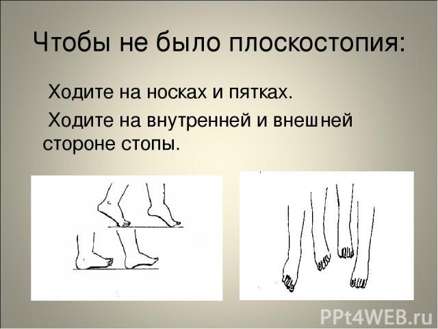 Чтобы не было плоскостопия: Ходите на носках и пятках. Ходите на внутренней и внешней стороне стопы.