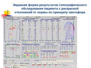 Экранная форма результатов топографического обследования пациента с раскраской о