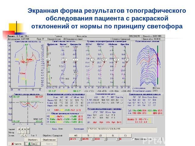 Экранная форма результатов топографического обследования пациента с раскраской отклонений от нормы по принципу светофора