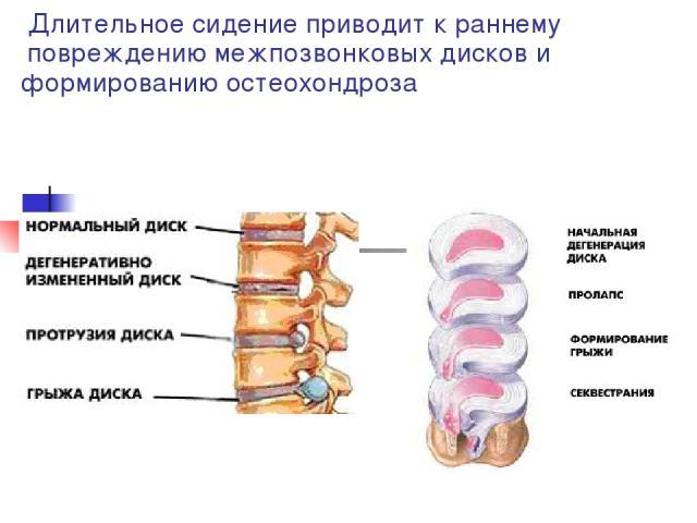 Длительное сидение приводит к раннему повреждению межпозвонковых дисков и формированию остеохондроза