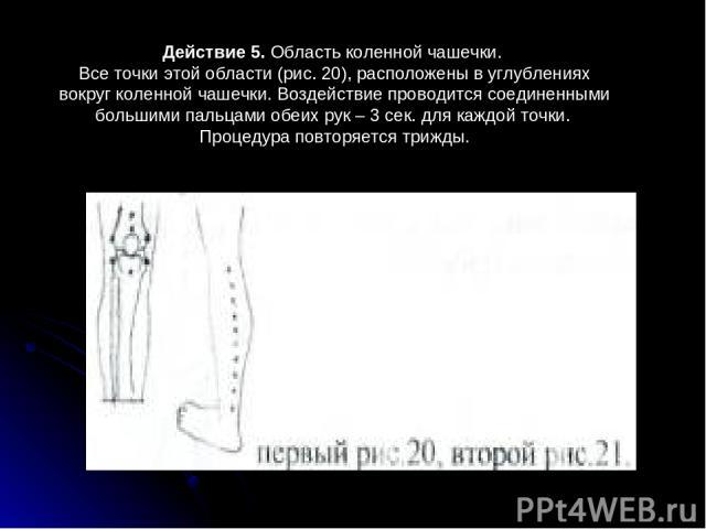 Действие 5. Область коленной чашечки. Все точки этой области (рис.20), расположены в углублениях вокруг коленной чашечки. Воздействие проводится соединенными большими пальцами обеих рук – 3сек. для каждой точки. Процедура повторяется трижды.