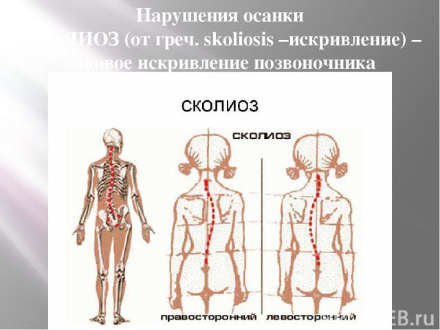 Нарушения осанки СКОЛИОЗ (от греч. skoliosis –искривление) – боковое искривление позвоночника