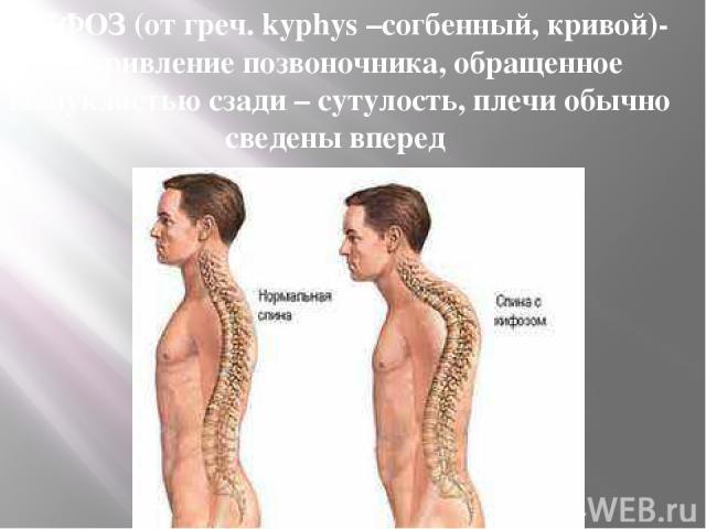 КИФОЗ (от греч. kyphys –согбенный, кривой)- искривление позвоночника, обращенное выпуклостью сзади – сутулость, плечи обычно сведены вперед