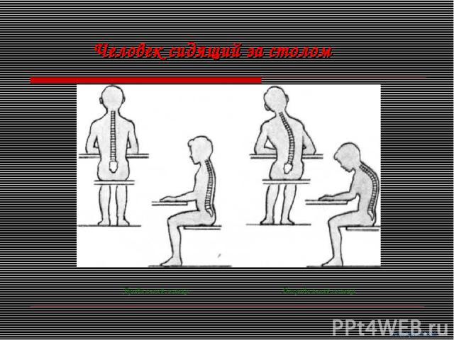 Человек сидящий за столом Правильная осанка Неправильная осанка Содержание