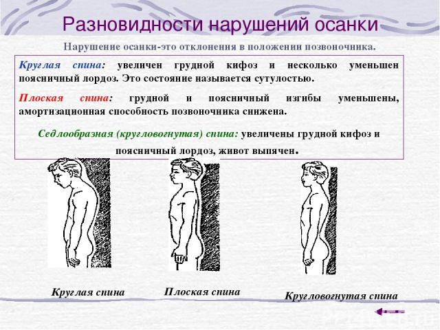 Разновидности нарушений осанки Нарушение осанки-это отклонения в положении позвоночника. Круглая спина: увеличен грудной кифоз и несколько уменьшен поясничный лордоз. Это состояние называется сутулостью. Плоская спина: грудной и поясничный изгибы ум…