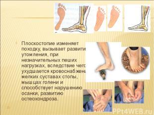 Плоскостопие изменяет походку, вызывает развитие утомления, при незначительных п