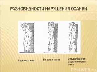 * Круглая спина Плоская спина Седлообразная (кругловогнутая) спина