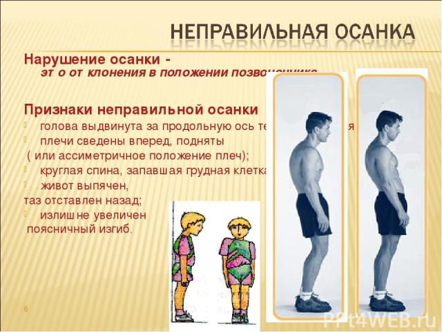 Нарушение осанки - это отклонения в положении позвоночника. Признаки неправильной осанки голова выдвинута за продольную ось тела (опущенная голова); плечи сведены вперед, подняты ( или ассиметричное положение плеч); круглая спина, запавшая грудная к…