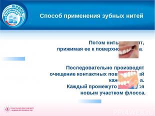 Способ применения зубных нитей Потом нить выводят, прижимая ее к поверхности зуб