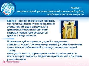Кариес – является самой распространенной патологией зубов, особенно в детском во