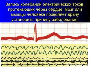 Запись колебаний электрических токов, протекающих через сердце, мозг или мышцы ч