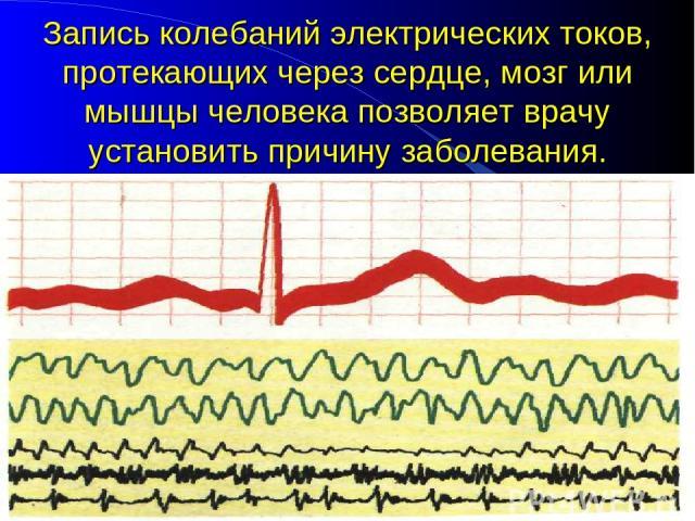 Запись колебаний электрических токов, протекающих через сердце, мозг или мышцы человека позволяет врачу установить причину заболевания.