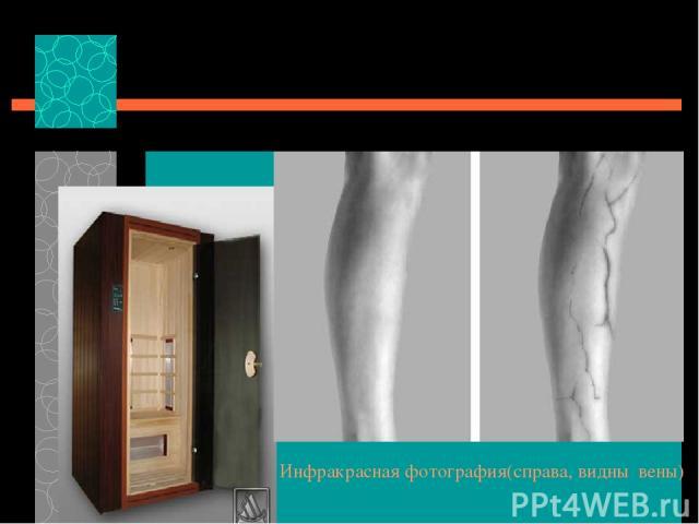 Инфракрасная фотография(справа, видны вены) Инфракрасная сауна