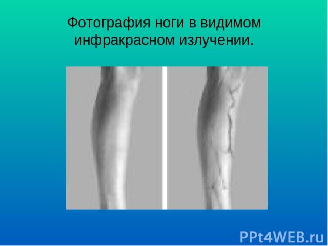 Фотография ноги в видимом инфракрасном излучении.