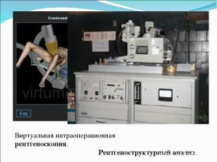 Виртуальная интраоперационная рентгеноскопия. Рентгеноструктурный анализ.
