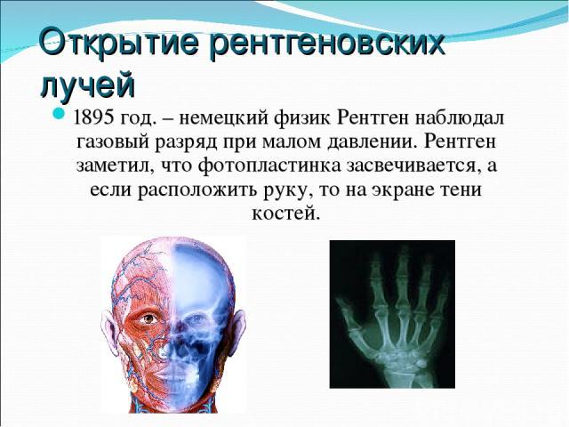 Открытие рентгеновских лучей 1895 год. – немецкий физик Рентген наблюдал газовый разряд при малом давлении. Рентген заметил, что фотопластинка засвечивается, а если расположить руку, то на экране тени костей.