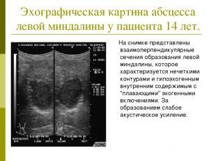 Эхографическая картина абсцесса левой миндалины у пациента 14 лет. На снимке пре