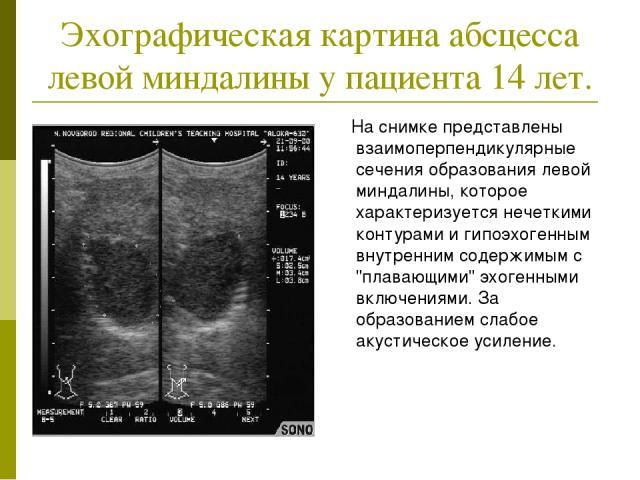 Эхографическая картина абсцесса левой миндалины у пациента 14 лет. На снимке представлены взаимоперпендикулярные сечения образования левой миндалины, которое характеризуется нечеткими контурами и гипоэхогенным внутренним содержимым с