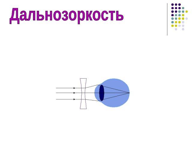 Недостаток зрения, при котором параллельные лучи после преломления в глазу собираются не на сетчатке, а за ней