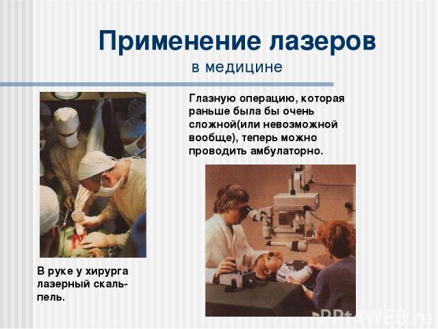 Применение лазеров в медицине В руке у хирурга лазерный скаль-пель. Глазную операцию, которая раньше была бы очень сложной(или невозможной вообще), теперь можно проводить амбулаторно.