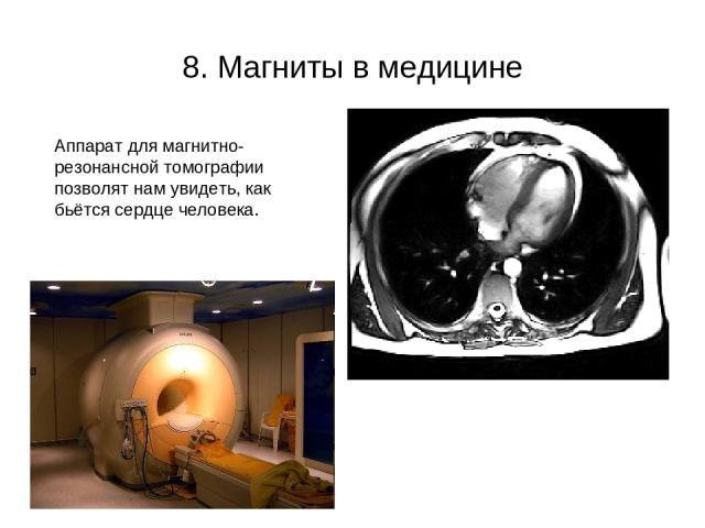 8. Магниты в медицине Аппарат для магнитно- резонансной томографии позволят нам увидеть, как бьётся сердце человека.