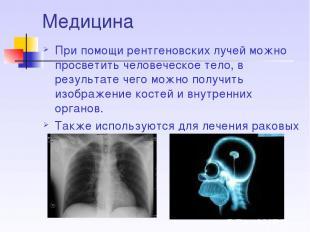 Медицина При помощи рентгеновских лучей можно просветить человеческое тело, в ре