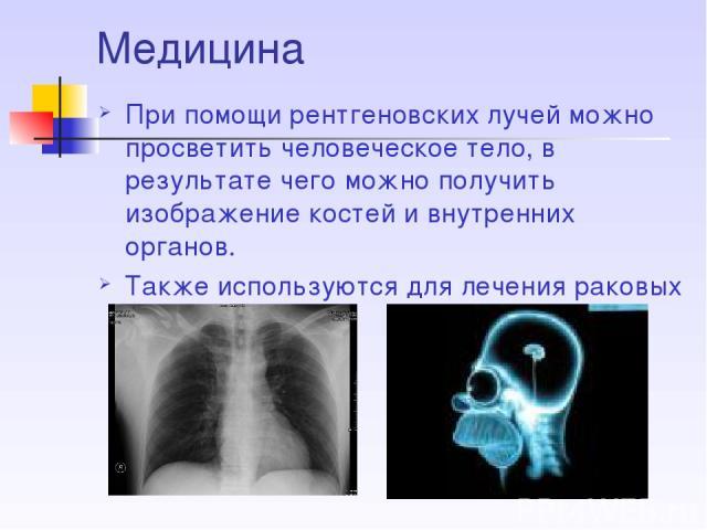 Медицина При помощи рентгеновских лучей можно просветить человеческое тело, в результате чего можно получить изображение костей и внутренних органов. Также используются для лечения раковых заболеваний.
