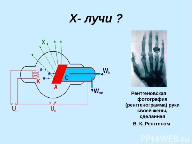 Х- лучи ? Рентгеновская фотография (рентгенограмма) руки своей жены, сделанная В.К.Рентгеном