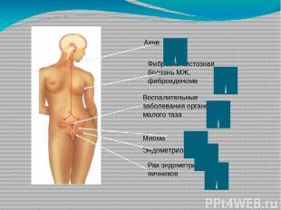 Aкне Фиброзно-кистозная болезнь МЖ, фиброаденома Воспалительные заболевания орга