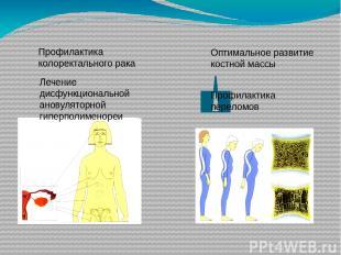 Профилактика колоректального рака Лечение дисфункциональной ановуляторной гиперп