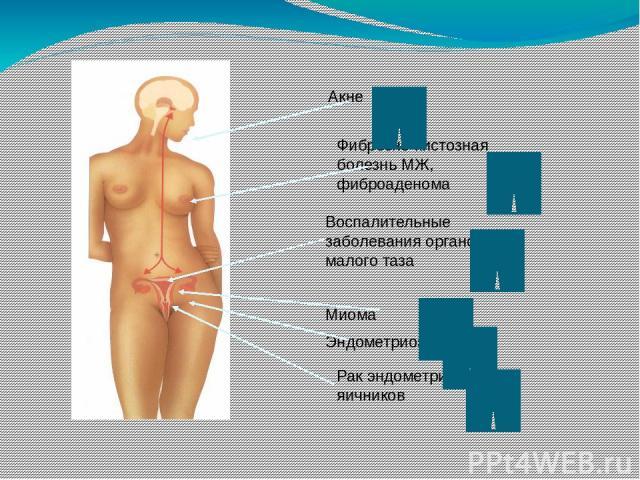 Aкне Фиброзно-кистозная болезнь МЖ, фиброаденома Воспалительные заболевания органов малого таза Миома Эндометриоз Рак эндометрия и яичников