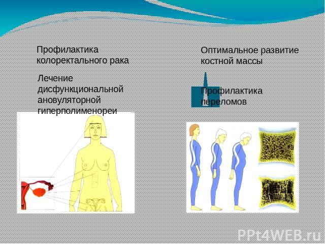 Профилактика колоректального рака Лечение дисфункциональной ановуляторной гиперполименореи Оптимальное развитие костной массы Профилактика переломов