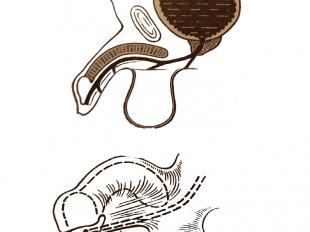 Гипоспадия